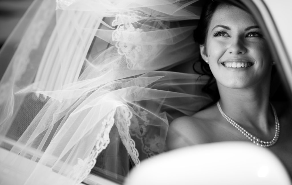 Get the perfect smile for your wedding way